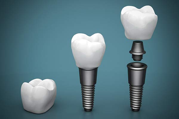 Lehighton dental implant surgery information